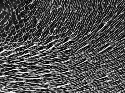 Morphbank biodiversity NSF FSU Florida State University Phoridae  SEM HMDS Hind femur Posterior Male Unknown P. Hibbs Adult SOUTH AMERICA  ECUADOR   Sacha Lodge Natural History Museum of Los Angeles County Animalia Arthropoda Hexapoda Insecta Pterygota Neoptera Diptera Brachycera Muscomorpha Phoridae Phorinae Cyrtophorina Cyrtophorina kerri