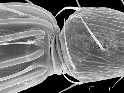 Morphbank biodiversity NSF FSU Florida State University Stefan Schmidt's group Stefan Schmidt SEM Air dried from ethanol, Au-Pd coated Antenna, basal segments Internal Female Unspecified Stefan Schmidt Adult Europe  ITALY   Campania, Portici, Instituto di Entomologia Agraria, University of Naples Zoologische Staatssammlung Animalia Arthropoda Hexapoda Insecta Pterygota Neoptera Hymenoptera Apocrita Terebrantes Chalcidoidea Aphelinidae Coccophaginae Coccophagoides Coccophagoides moeris